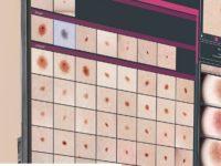 AI pomaga we wczesnym wykryciu raka skóry